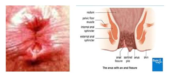 Hamile kadınlarda hemoroid - hızlı çözüm gerektiren hassas bir problem