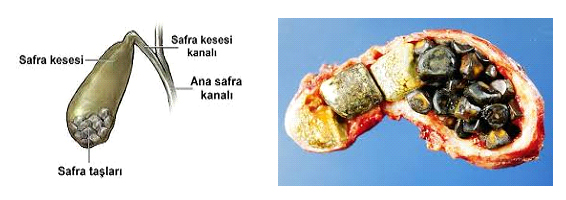 safrakesesi2